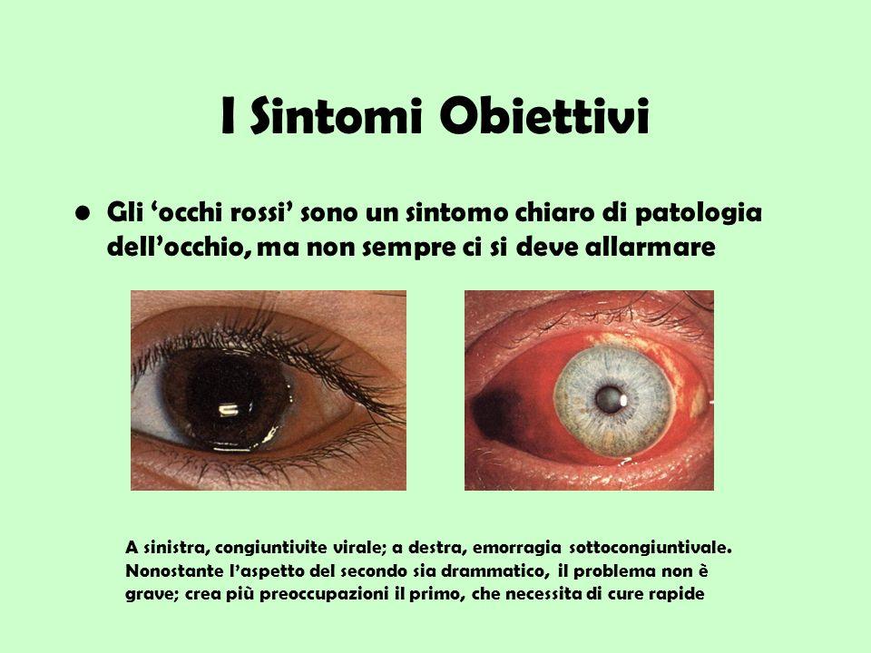 I Sintomi Obiettivi Gli 'occhi rossi' sono un sintomo chiaro di patologia dell'occhio, ma non sempre ci si deve allarmare.
