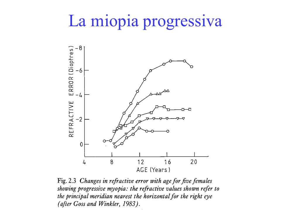 La miopia progressiva