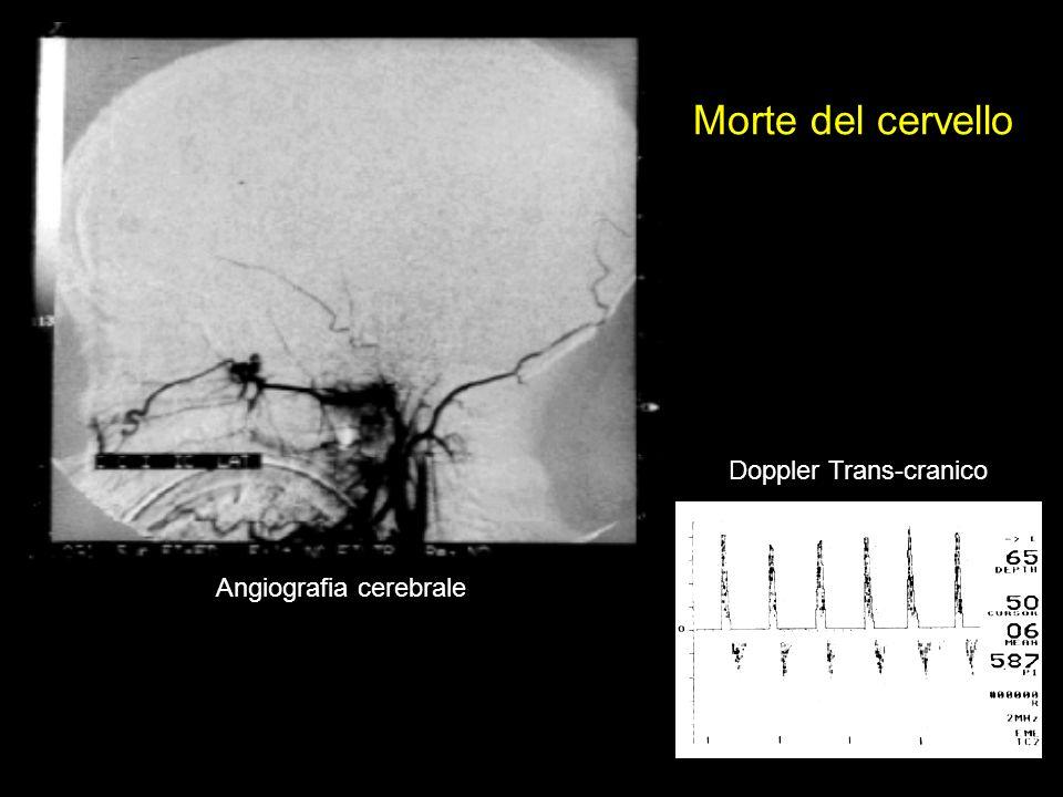 Morte del cervello Doppler Trans-cranico Angiografia cerebrale
