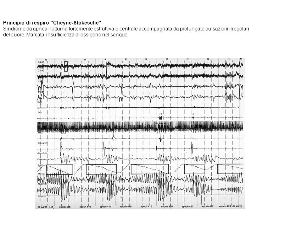 Principio di respiro Cheyne-Stokesche Sindrome da apnea notturna fortemente ostruttiva e centrale accompagnata da prolungate pulsazioni irregolari del cuore. Marcata insufficienza di ossigeno nel sangue.