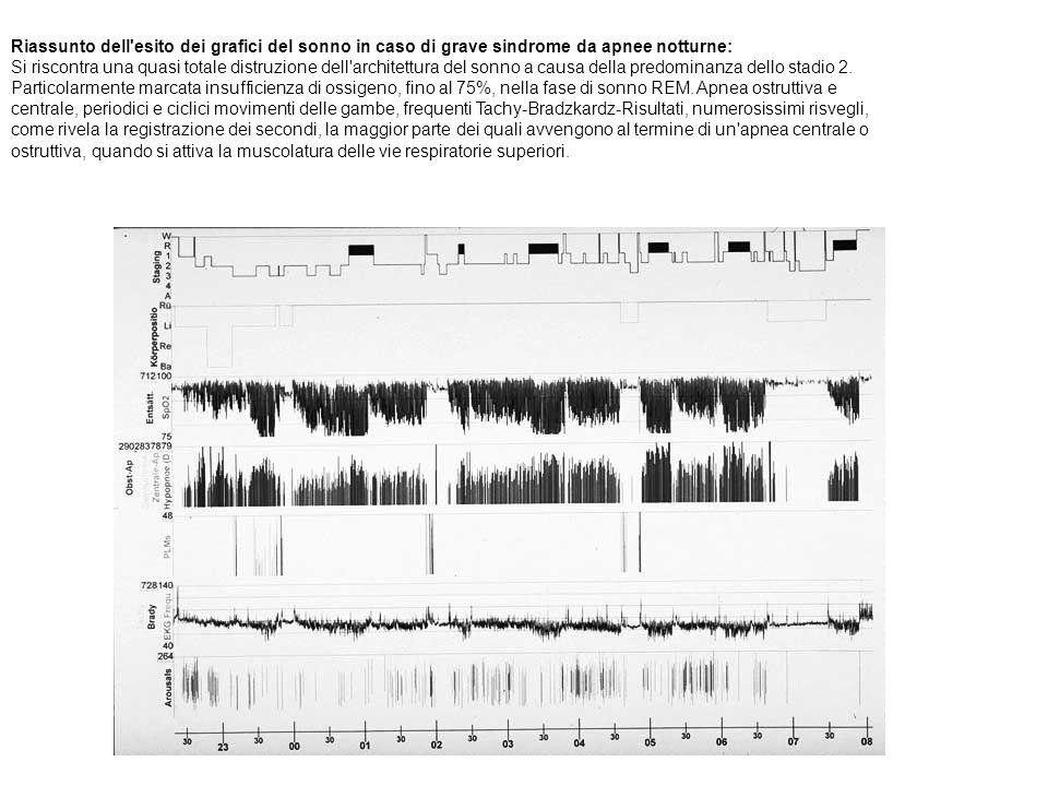 Riassunto dell esito dei grafici del sonno in caso di grave sindrome da apnee notturne: Si riscontra una quasi totale distruzione dell architettura del sonno a causa della predominanza dello stadio 2. Particolarmente marcata insufficienza di ossigeno, fino al 75%, nella fase di sonno REM. Apnea ostruttiva e centrale, periodici e ciclici movimenti delle gambe, frequenti Tachy-Bradzkardz-Risultati, numerosissimi risvegli, come rivela la registrazione dei secondi, la maggior parte dei quali avvengono al termine di un apnea centrale o ostruttiva, quando si attiva la muscolatura delle vie respiratorie superiori.