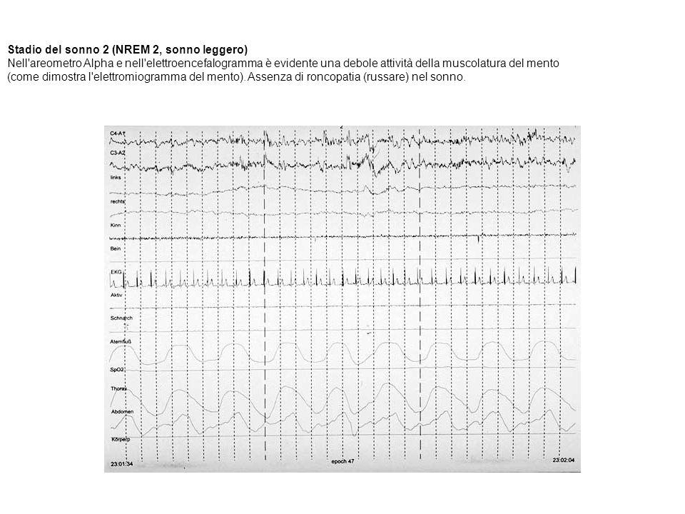 Stadio del sonno 2 (NREM 2, sonno leggero) Nell areometro Alpha e nell elettroencefalogramma è evidente una debole attività della muscolatura del mento (come dimostra l elettromiogramma del mento). Assenza di roncopatia (russare) nel sonno.