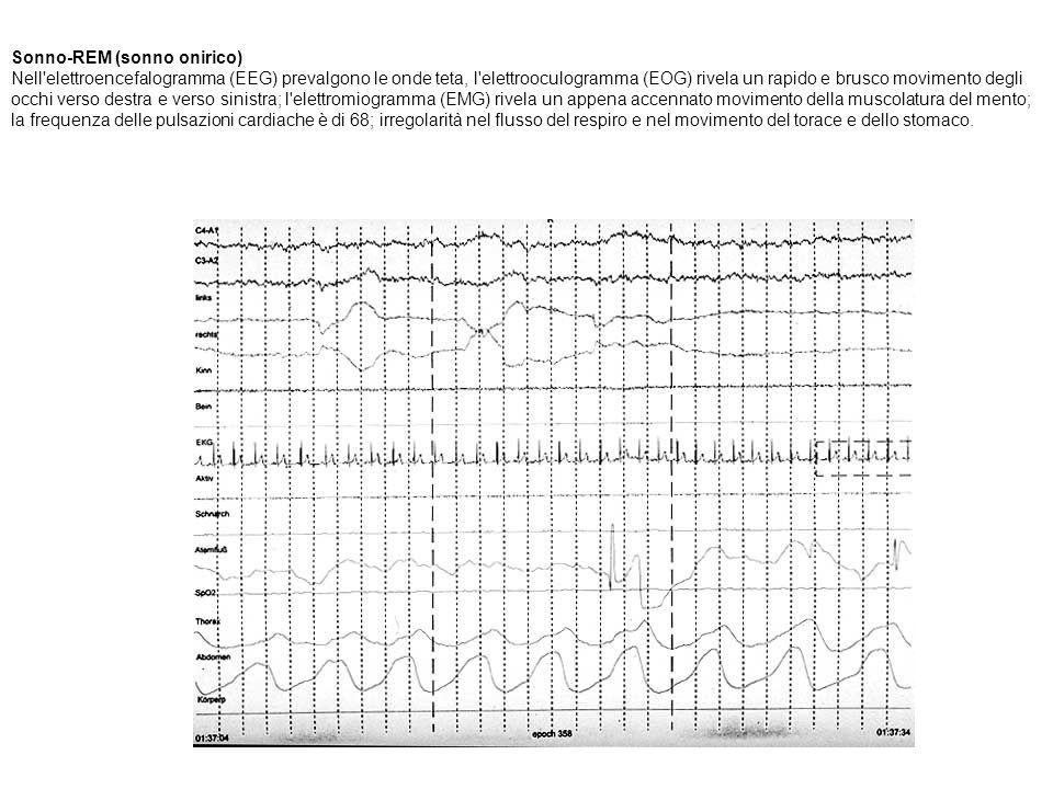 Sonno-REM (sonno onirico) Nell elettroencefalogramma (EEG) prevalgono le onde teta, l elettrooculogramma (EOG) rivela un rapido e brusco movimento degli occhi verso destra e verso sinistra; l elettromiogramma (EMG) rivela un appena accennato movimento della muscolatura del mento; la frequenza delle pulsazioni cardiache è di 68; irregolarità nel flusso del respiro e nel movimento del torace e dello stomaco.