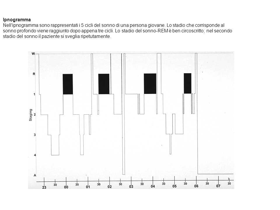 Ipnogramma Nell ipnogramma sono rappresentati i 5 cicli del sonno di una persona giovane. Lo stadio che corrisponde al sonno profondo viene raggiunto dopo appena tre cicli. Lo stadio del sonno-REM è ben circoscritto; nel secondo stadio del sonno il paziente si sveglia ripetutamente.