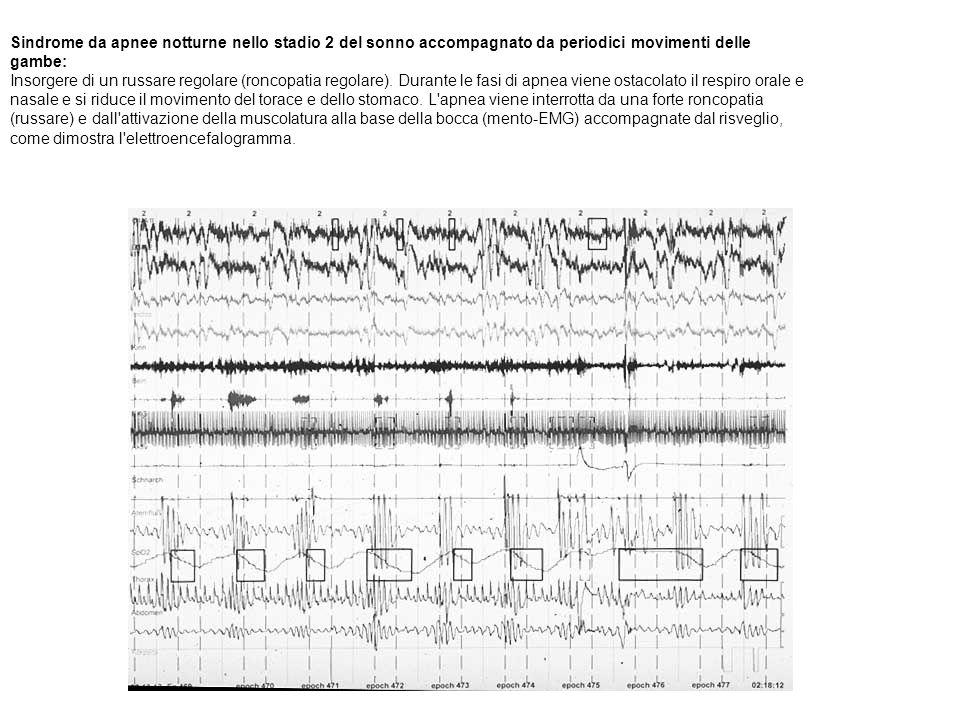 Sindrome da apnee notturne nello stadio 2 del sonno accompagnato da periodici movimenti delle gambe: Insorgere di un russare regolare (roncopatia regolare). Durante le fasi di apnea viene ostacolato il respiro orale e nasale e si riduce il movimento del torace e dello stomaco. L apnea viene interrotta da una forte roncopatia (russare) e dall attivazione della muscolatura alla base della bocca (mento-EMG) accompagnate dal risveglio, come dimostra l elettroencefalogramma.