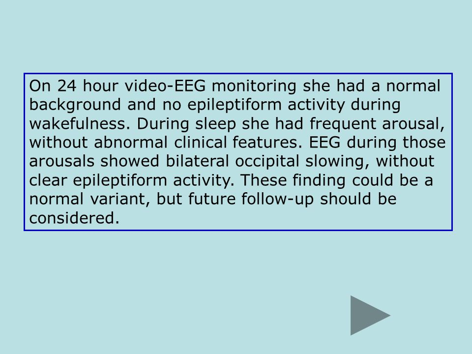 On 24 hour video-EEG monitoring she had a normal background and no epileptiform activity during wakefulness.