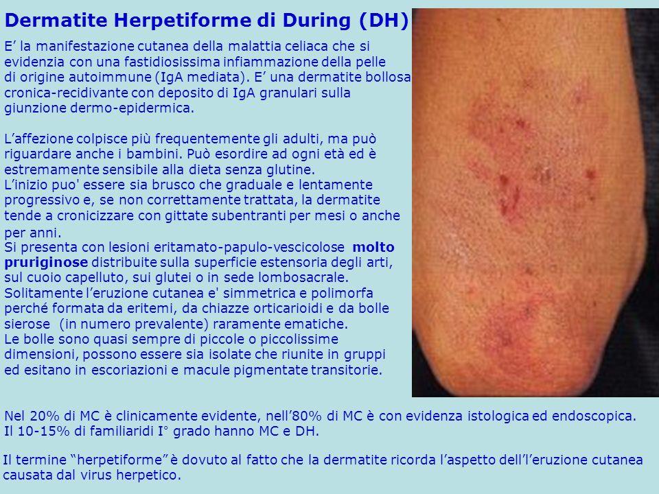Dermatite Herpetiforme di During (DH)