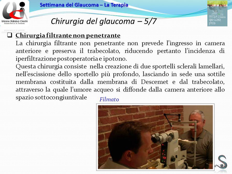 Chirurgia del glaucoma – 5/7