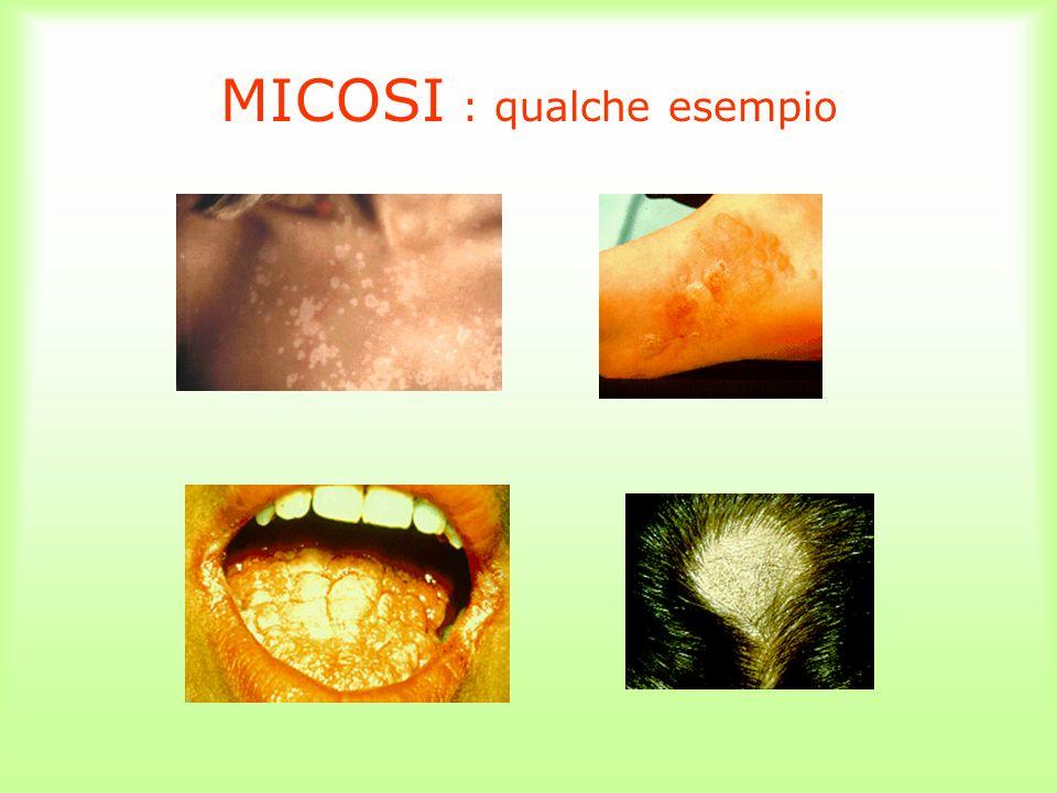 MICOSI : qualche esempio