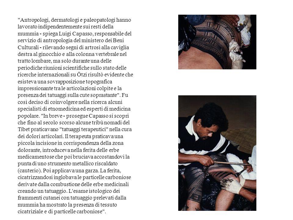 Antropologi, dermatologi e paleopatologi hanno lavorato indipendentemente sui resti della mummia - spiega Luigi Capasso, responsabile del servizio di antropologia del ministero dei Beni Culturali - rilevando segni di artrosi alla caviglia destra al ginocchio e alla colonna vertebrale nel tratto lombare, ma solo durante una delle periodiche riunioni scientifiche sullo stato delle ricerche internazionali su Ötzi risultò evidente che esisteva una sovrapposizione topografica impressionante tra le articolazioni colpite e la presenza dei tatuaggi sulla cute soprastante .