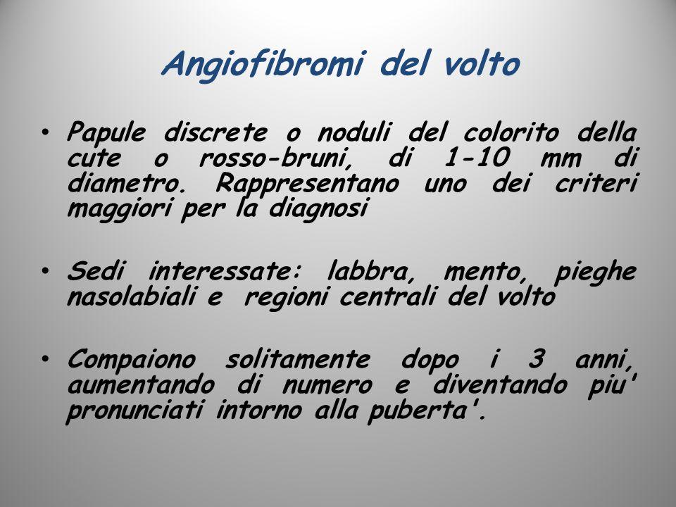 Angiofibromi del volto