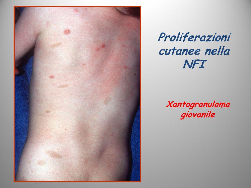 Proliferazioni cutanee nella NFI Xantogranuloma giovanile