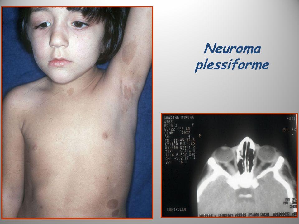 Neuroma plessiforme