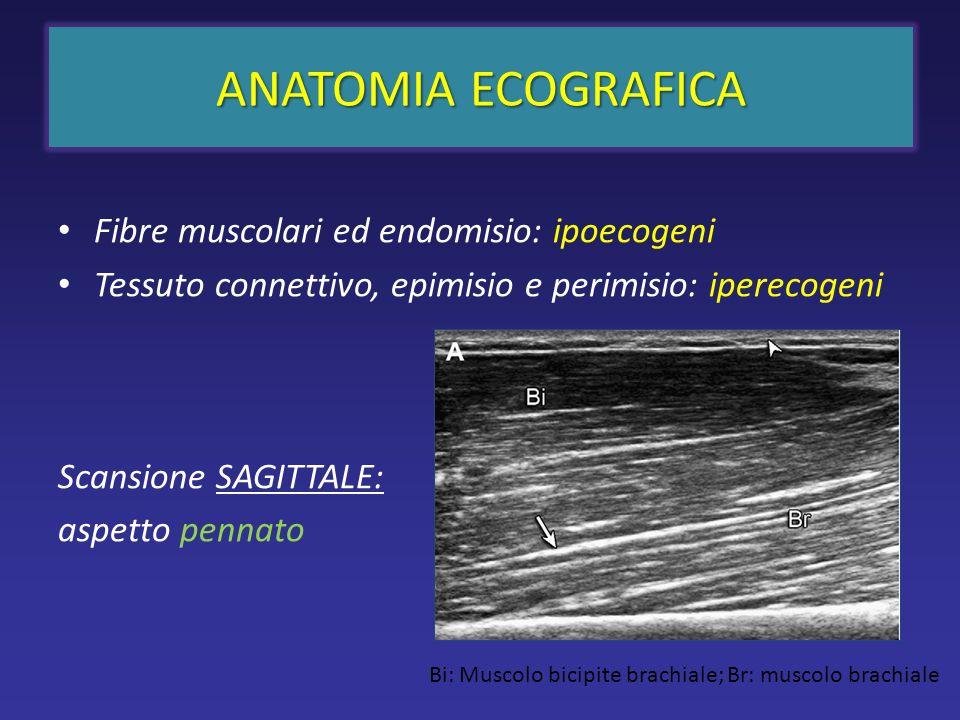ANATOMIA ECOGRAFICA Fibre muscolari ed endomisio: ipoecogeni