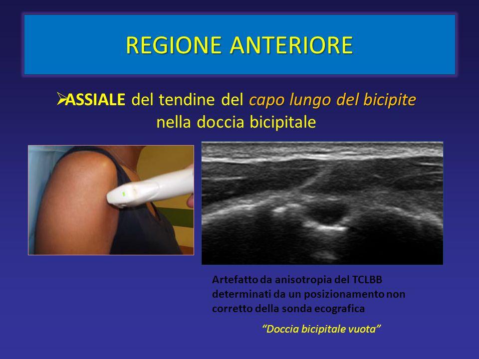 REGIONE ANTERIORE ASSIALE del tendine del capo lungo del bicipite nella doccia bicipitale.