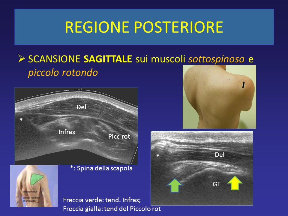 REGIONE POSTERIORE SCANSIONE SAGITTALE sui muscoli sottospinoso e piccolo rotondo. Del. * Infras.