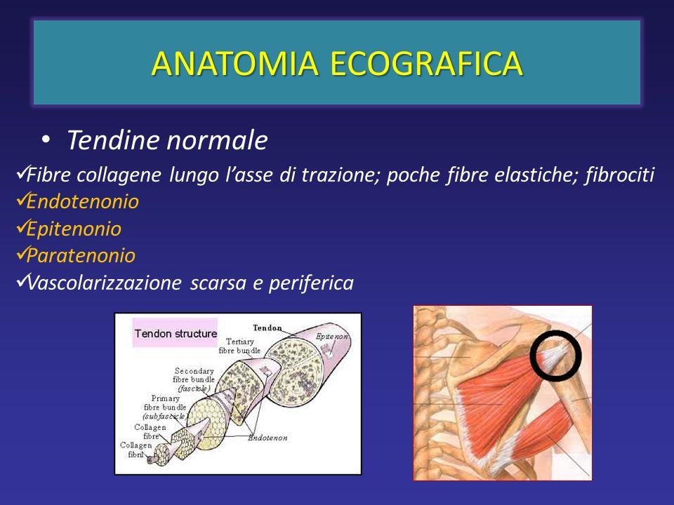 ANATOMIA ECOGRAFICA Tendine normale