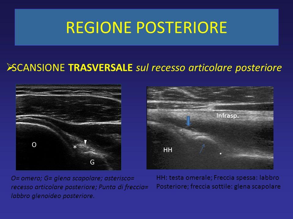 SCANSIONE TRASVERSALE sul recesso articolare posteriore