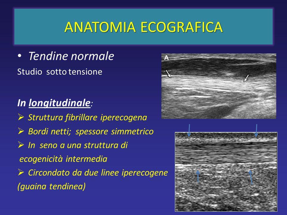 ANATOMIA ECOGRAFICA Tendine normale In longitudinale: