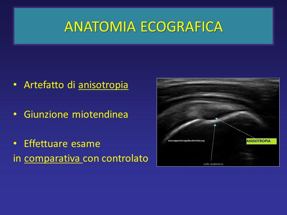 ANATOMIA ECOGRAFICA Artefatto di anisotropia Giunzione miotendinea