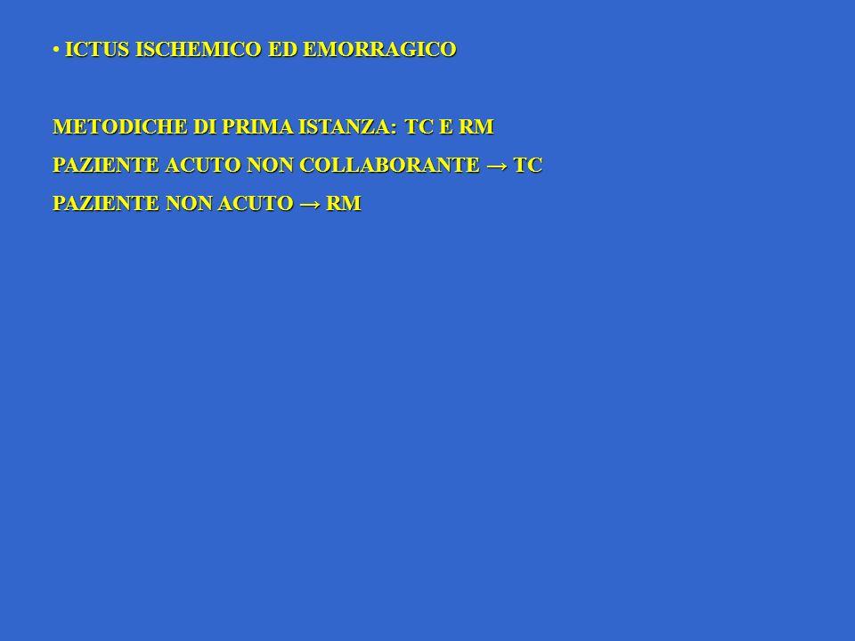 ICTUS ISCHEMICO ED EMORRAGICO