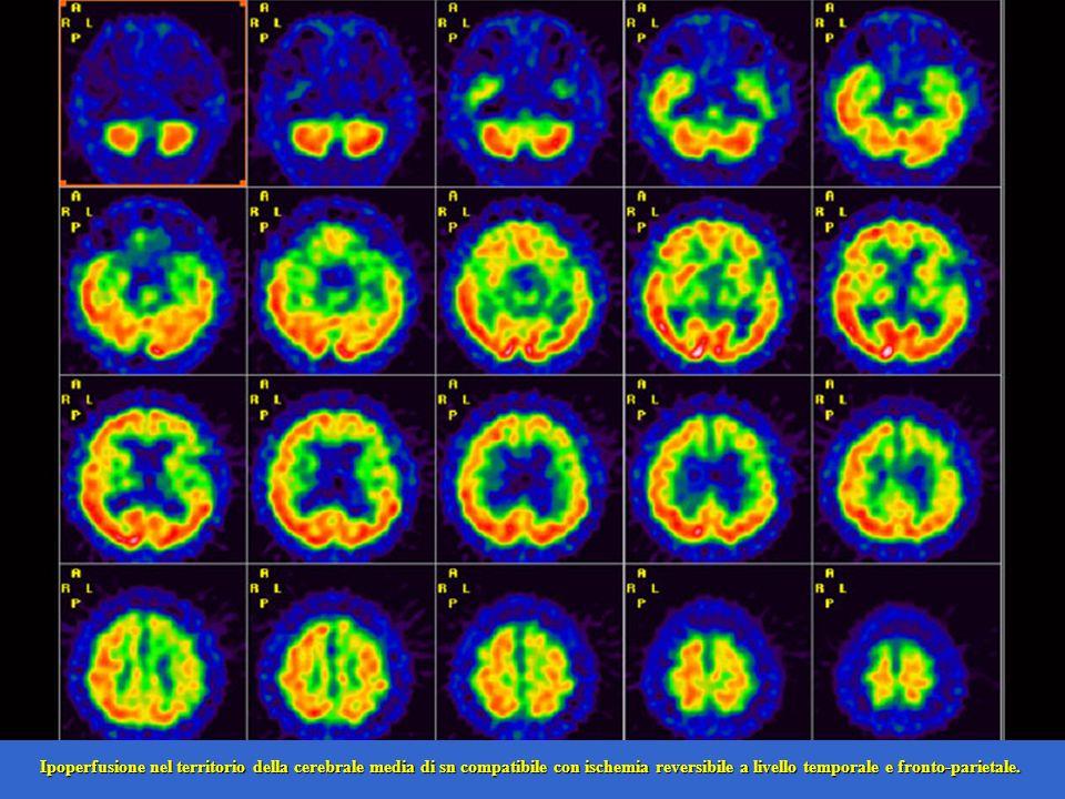 Ipoperfusione nel territorio della cerebrale media di sn compatibile con ischemia reversibile a livello temporale e fronto-parietale.