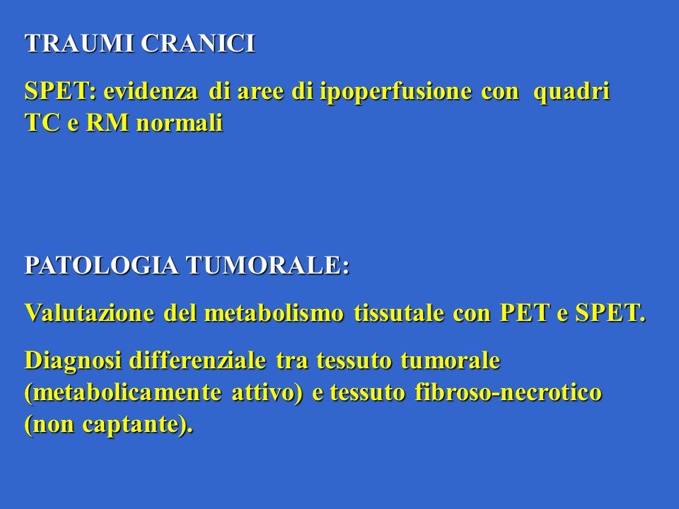 TRAUMI CRANICI SPET: evidenza di aree di ipoperfusione con quadri TC e RM normali. PATOLOGIA TUMORALE: