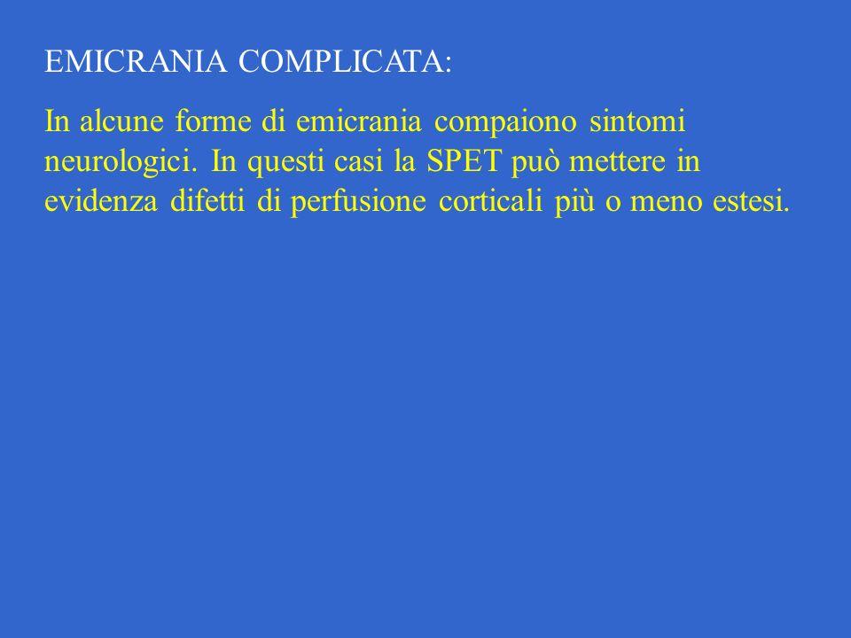 EMICRANIA COMPLICATA:
