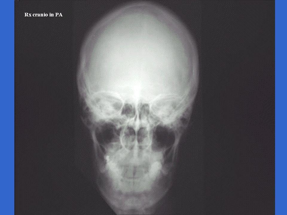 Rx cranio in PA