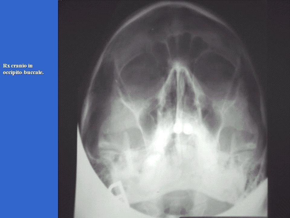 Rx cranio in occipito-buccale.