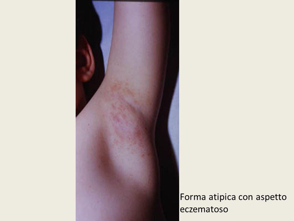 Forma atipica con aspetto eczematoso
