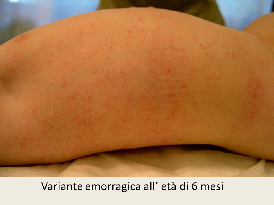 Variante emorragica all' età di 6 mesi