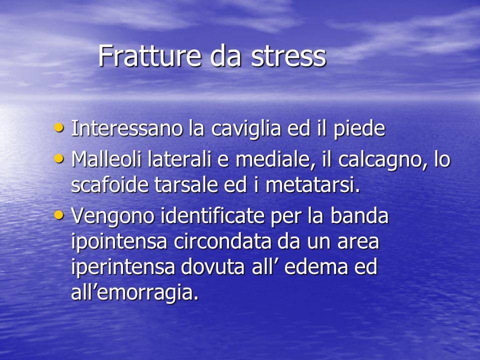 Fratture da stress Interessano la caviglia ed il piede