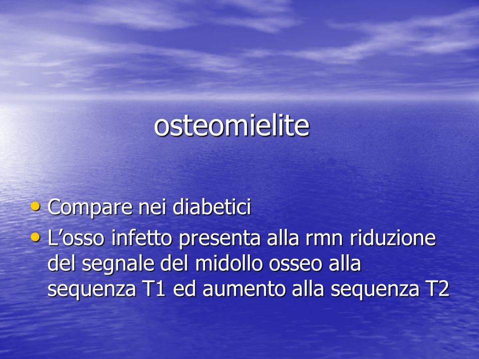 osteomielite Compare nei diabetici