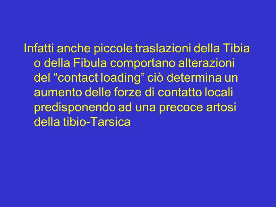 Infatti anche piccole traslazioni della Tibia o della Fibula comportano alterazioni del contact loading ciò determina un aumento delle forze di contatto locali predisponendo ad una precoce artosi della tibio-Tarsica