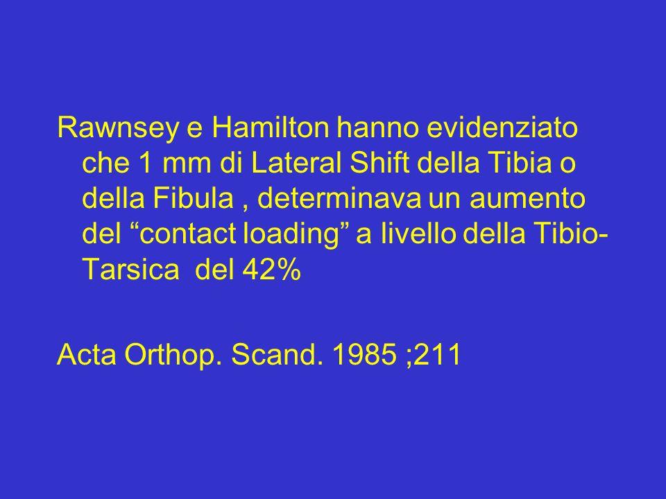 Rawnsey e Hamilton hanno evidenziato che 1 mm di Lateral Shift della Tibia o della Fibula , determinava un aumento del contact loading a livello della Tibio-Tarsica del 42%