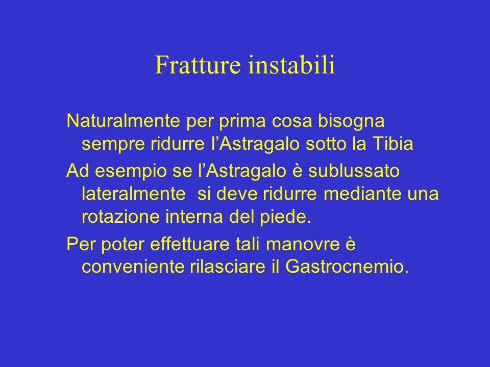 Fratture instabili Naturalmente per prima cosa bisogna sempre ridurre l'Astragalo sotto la Tibia.