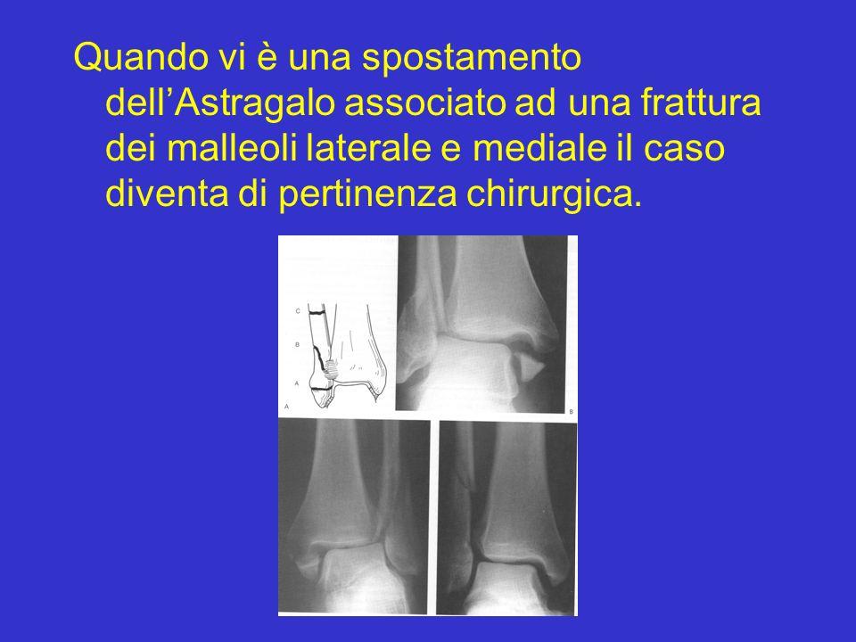 Quando vi è una spostamento dell'Astragalo associato ad una frattura dei malleoli laterale e mediale il caso diventa di pertinenza chirurgica.