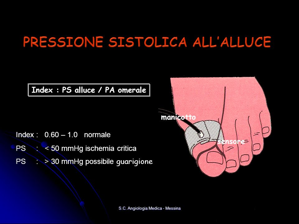 PRESSIONE SISTOLICA ALL'ALLUCE Index : PS alluce / PA omerale