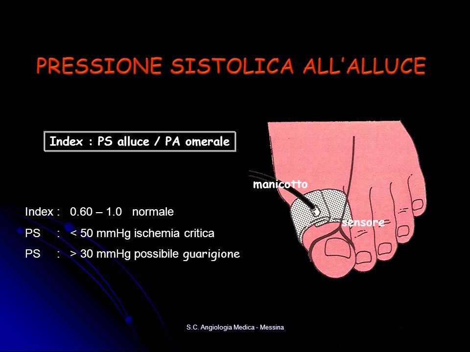 PRESSIONE SISTOLICA ALL'ALLUCE Index : PS alluce / PA omerale