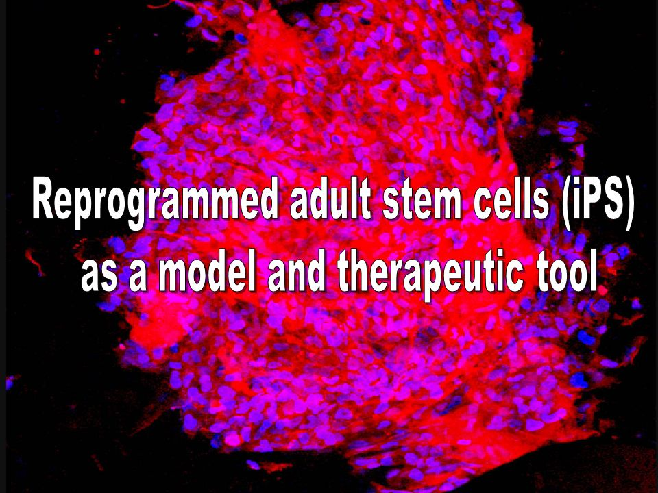Reprogrammed adult stem cells (iPS) as a model and therapeutic tool