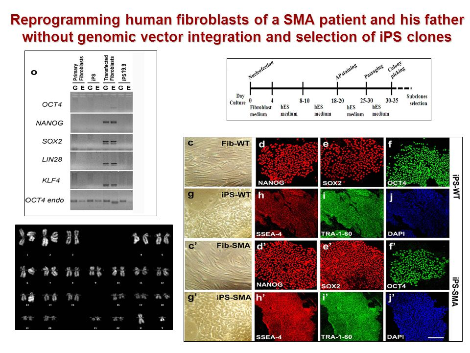 Reprogramming human fibroblasts of a SMA patient and his father