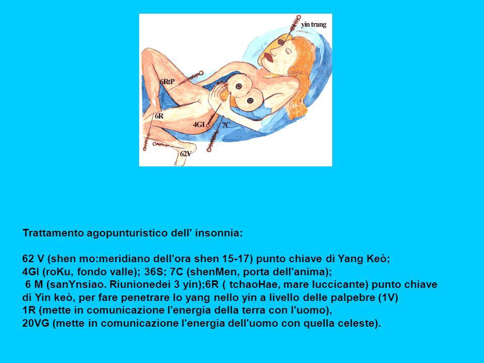 Trattamento agopunturistico dell insonnia: