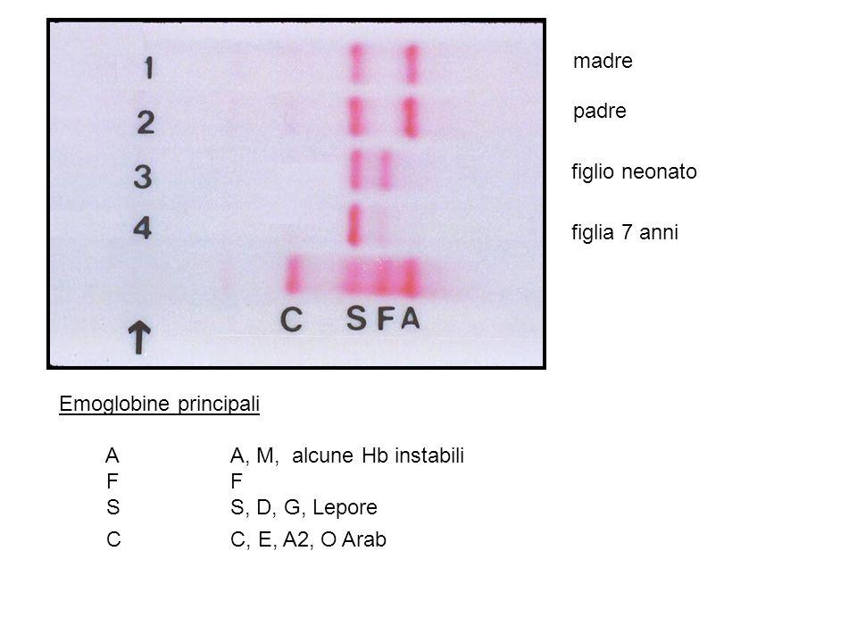 madre padre. figlio neonato. figlia 7 anni. Emoglobine principali. A A, M, alcune Hb instabili.