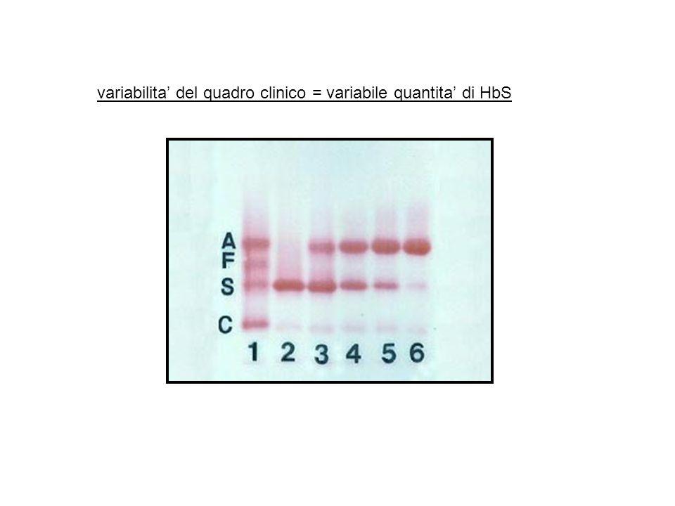 variabilita' del quadro clinico = variabile quantita' di HbS