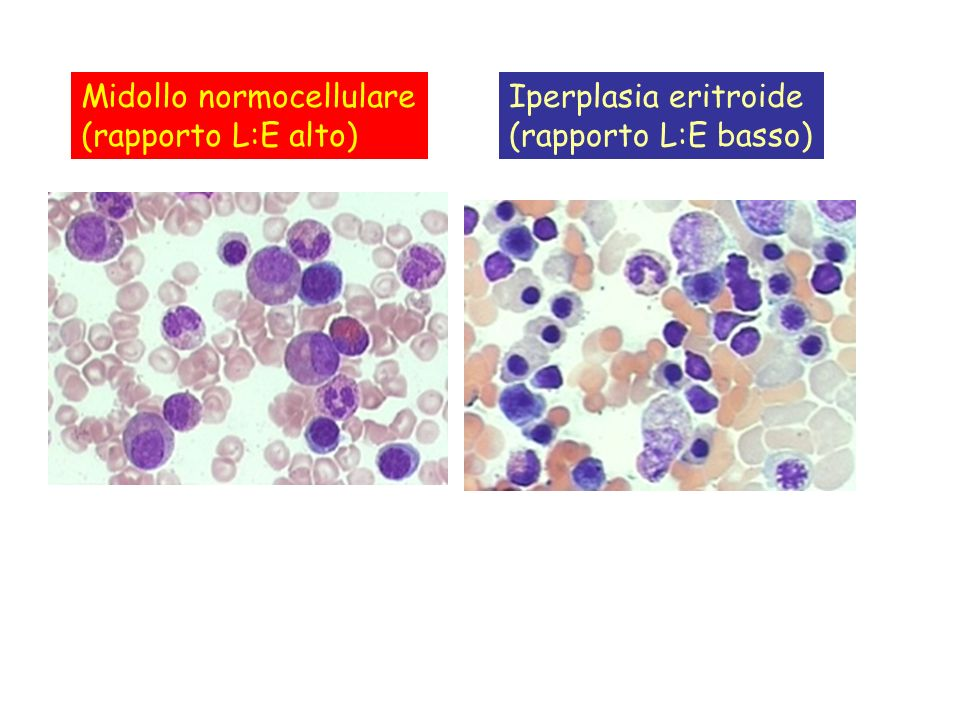 Midollo normocellulare