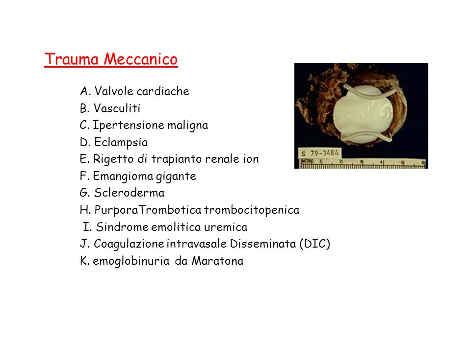 Trauma Meccanico A. Valvole cardiache B. Vasculiti