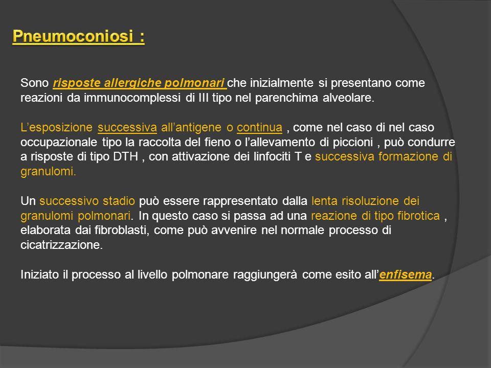 Pneumoconiosi :