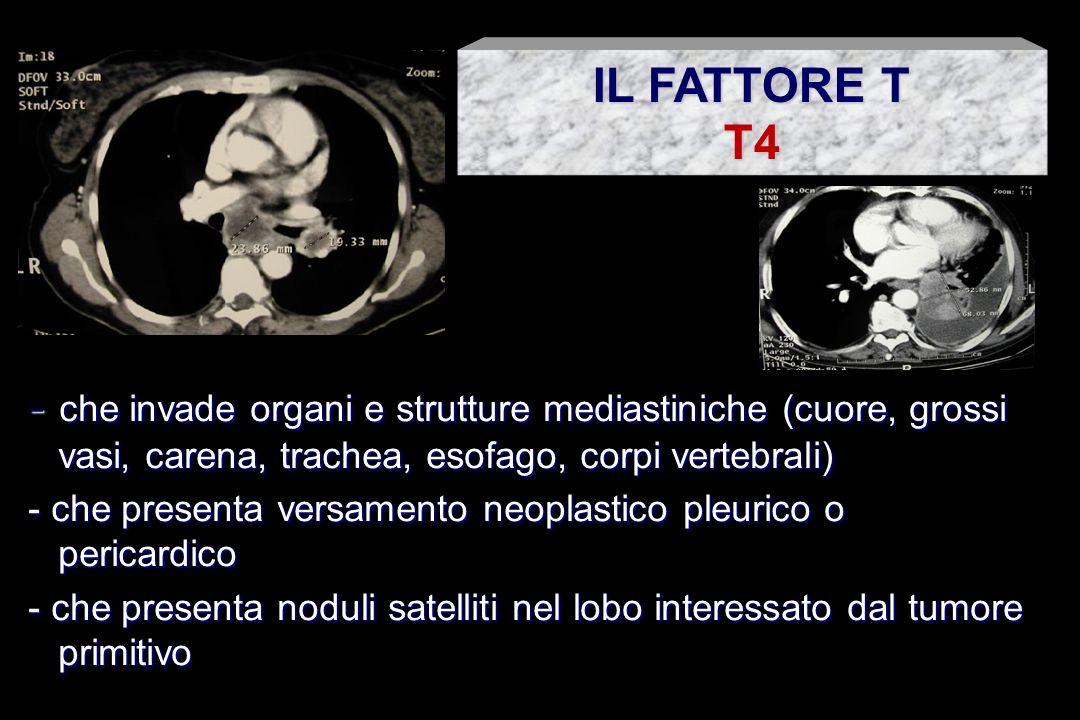 IL FATTORE T T4. - che invade organi e strutture mediastiniche (cuore, grossi vasi, carena, trachea, esofago, corpi vertebrali)