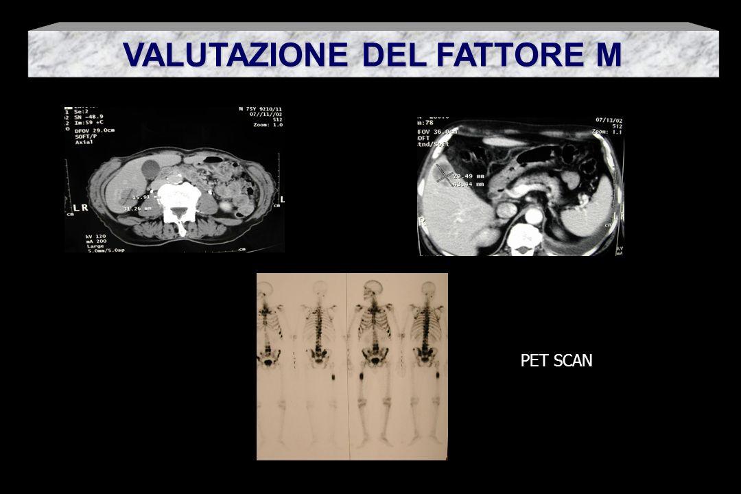 VALUTAZIONE DEL FATTORE M